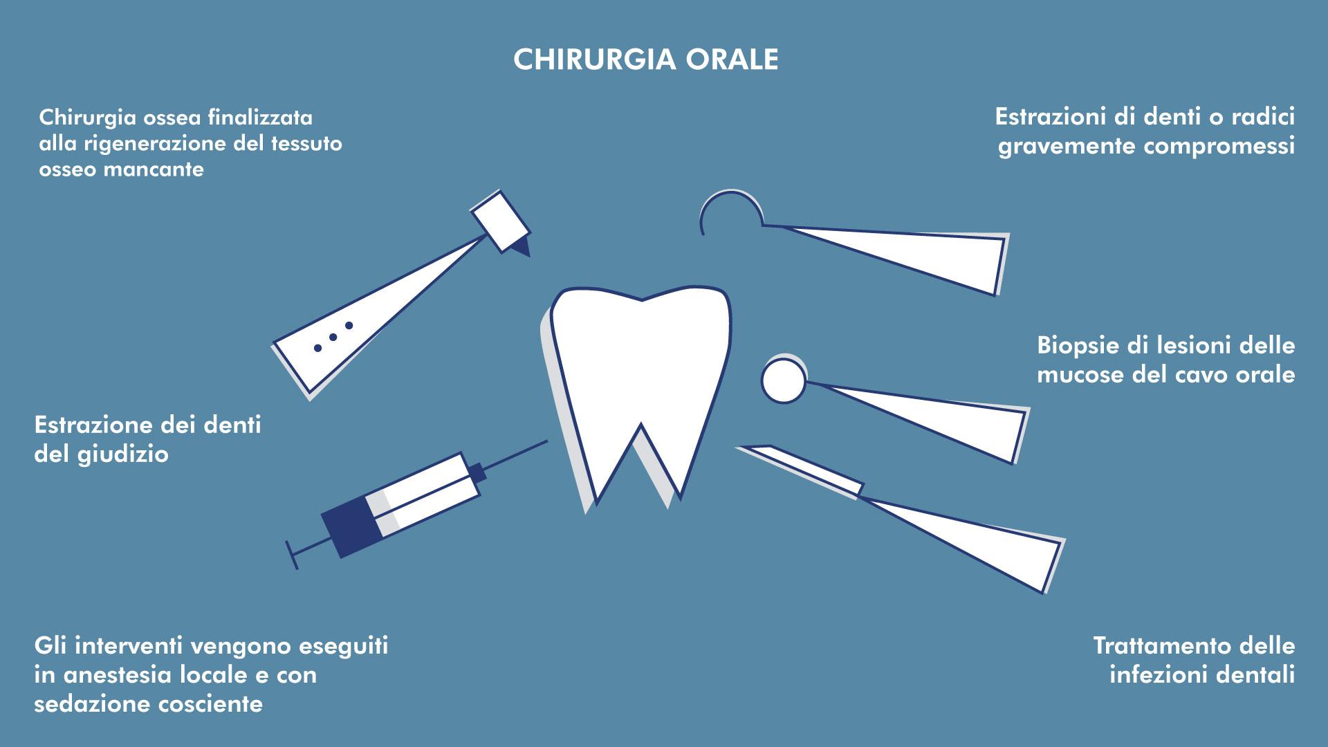 Chirurgia Orale e Rigenerativa | Centro Odontoiatrico Avanguardia