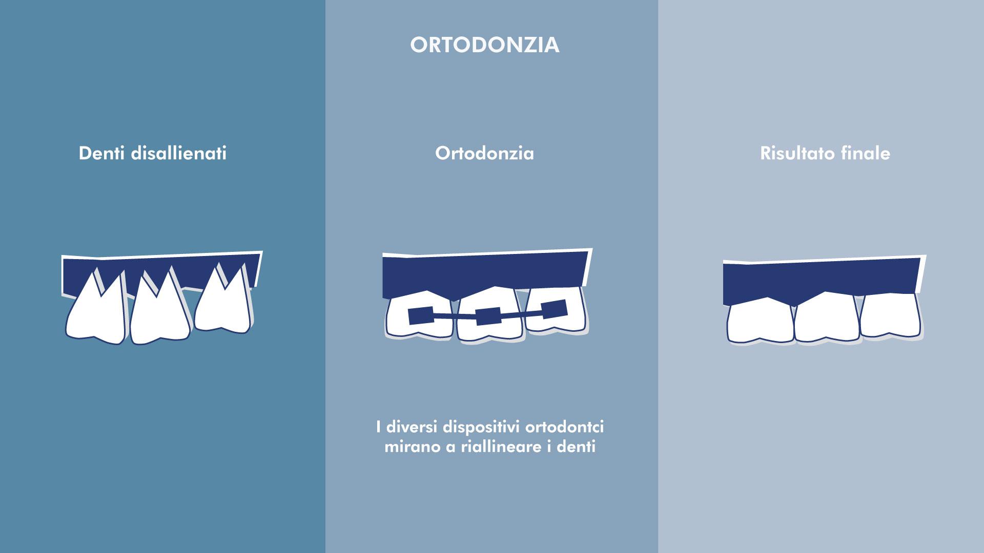 Ortodonzia | Centro Odontoiatrico Avanguardia