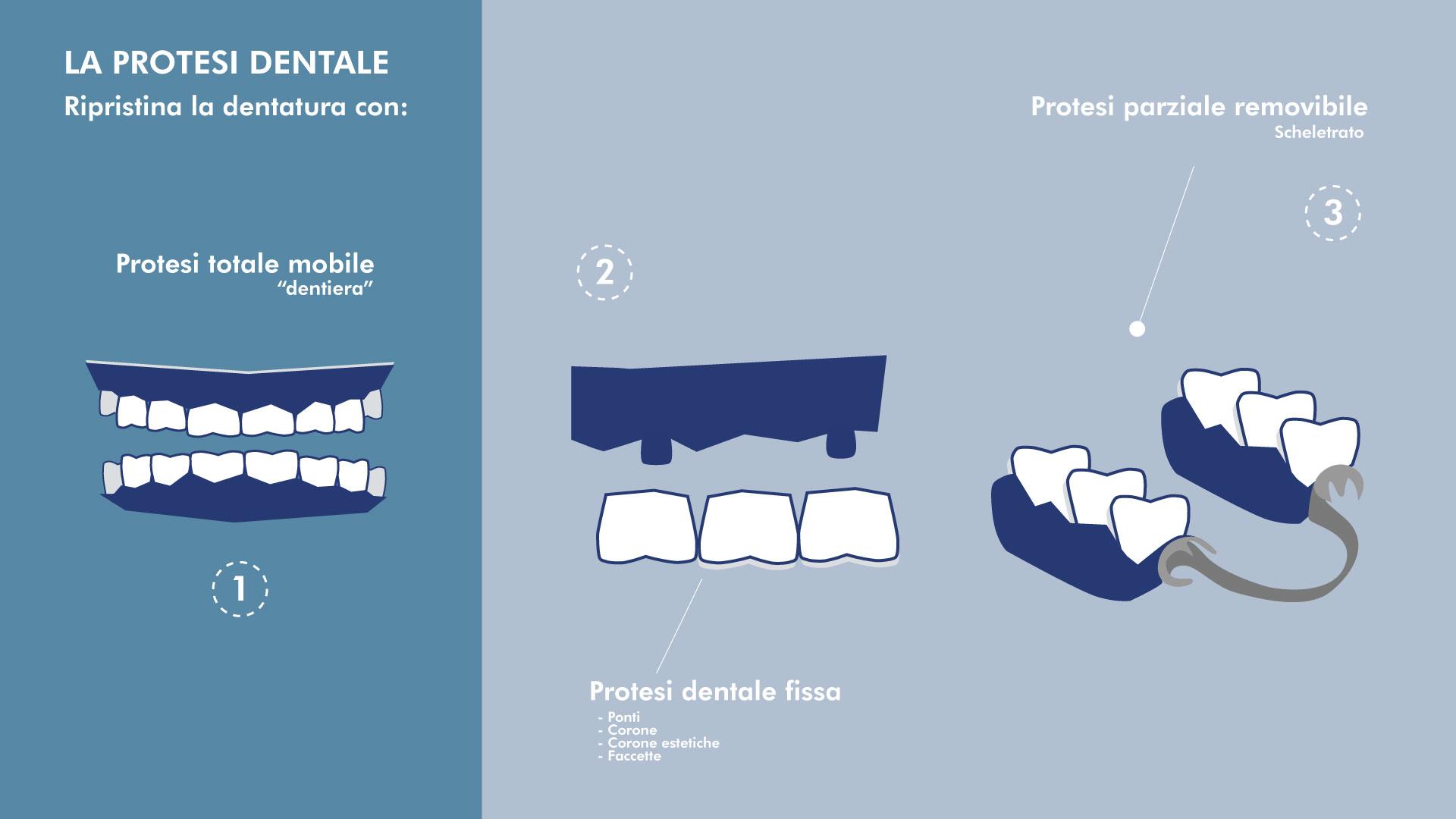 Protesi dentale fissa e mobile | Centro Odontoiatrico Avanguardia